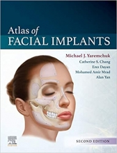 Atlas of Facial Implants 2nd Edition